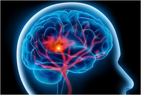 สมองเสื่อม-2