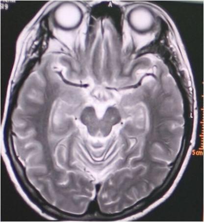 สมองเสื่อม1
